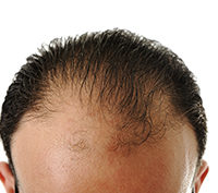 The Link Between Diabetes and Hair Loss